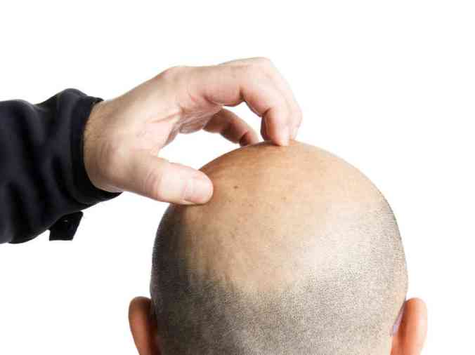 hand scratching what ppears to be male balding head